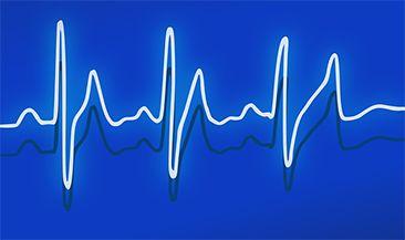 Эксперты изучили «биоритмы» электронных торгов: когда начнется подъем?